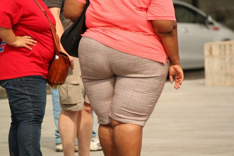 The effects of extreme weight loss