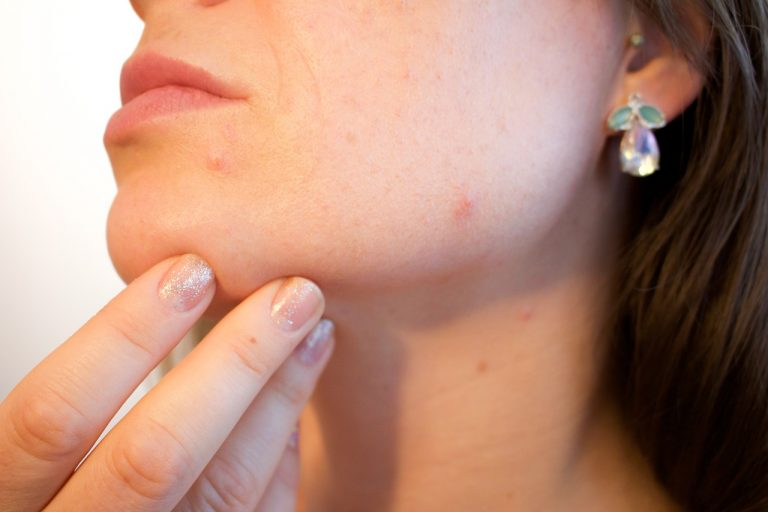 The influence of diet on acne: fact or myth?