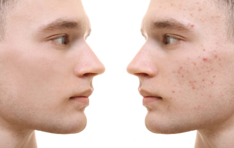 Dermatological problems in athletes – how to deal with acne on the shoulders and back?