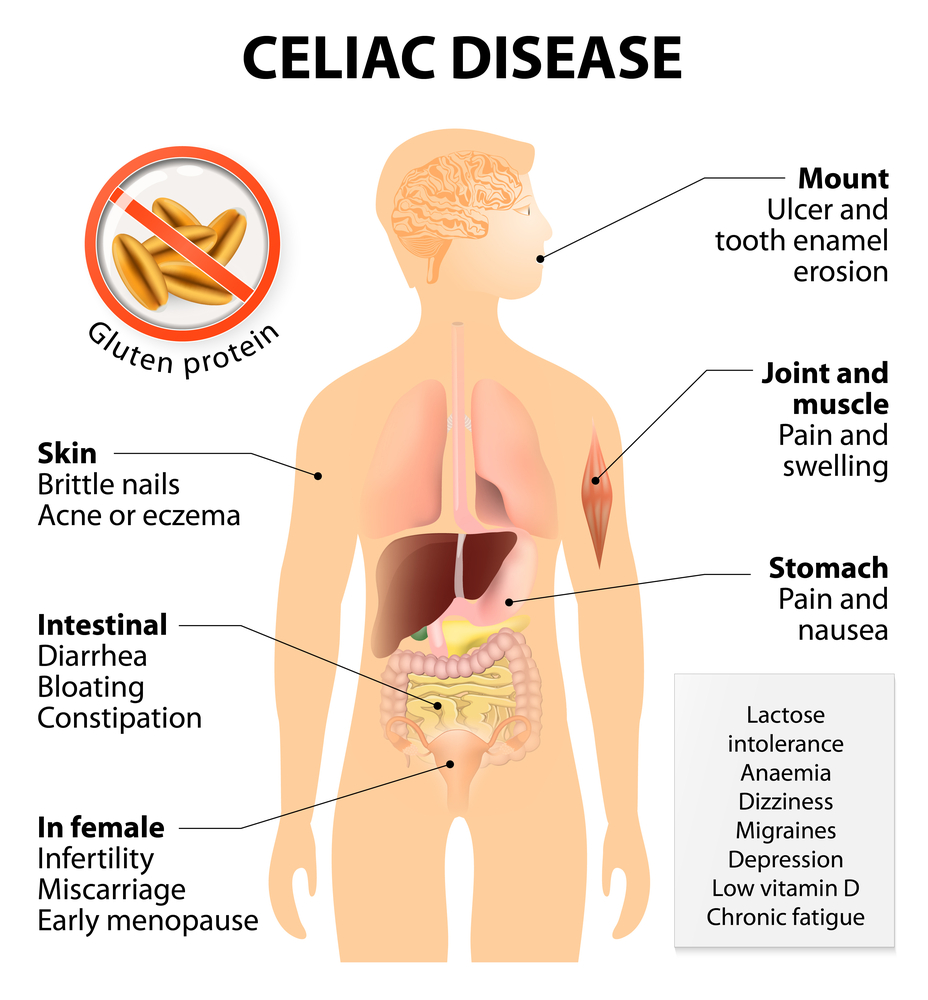 Celiac disease is main reason of glutenophobia! Is actual gluten intolerance disease