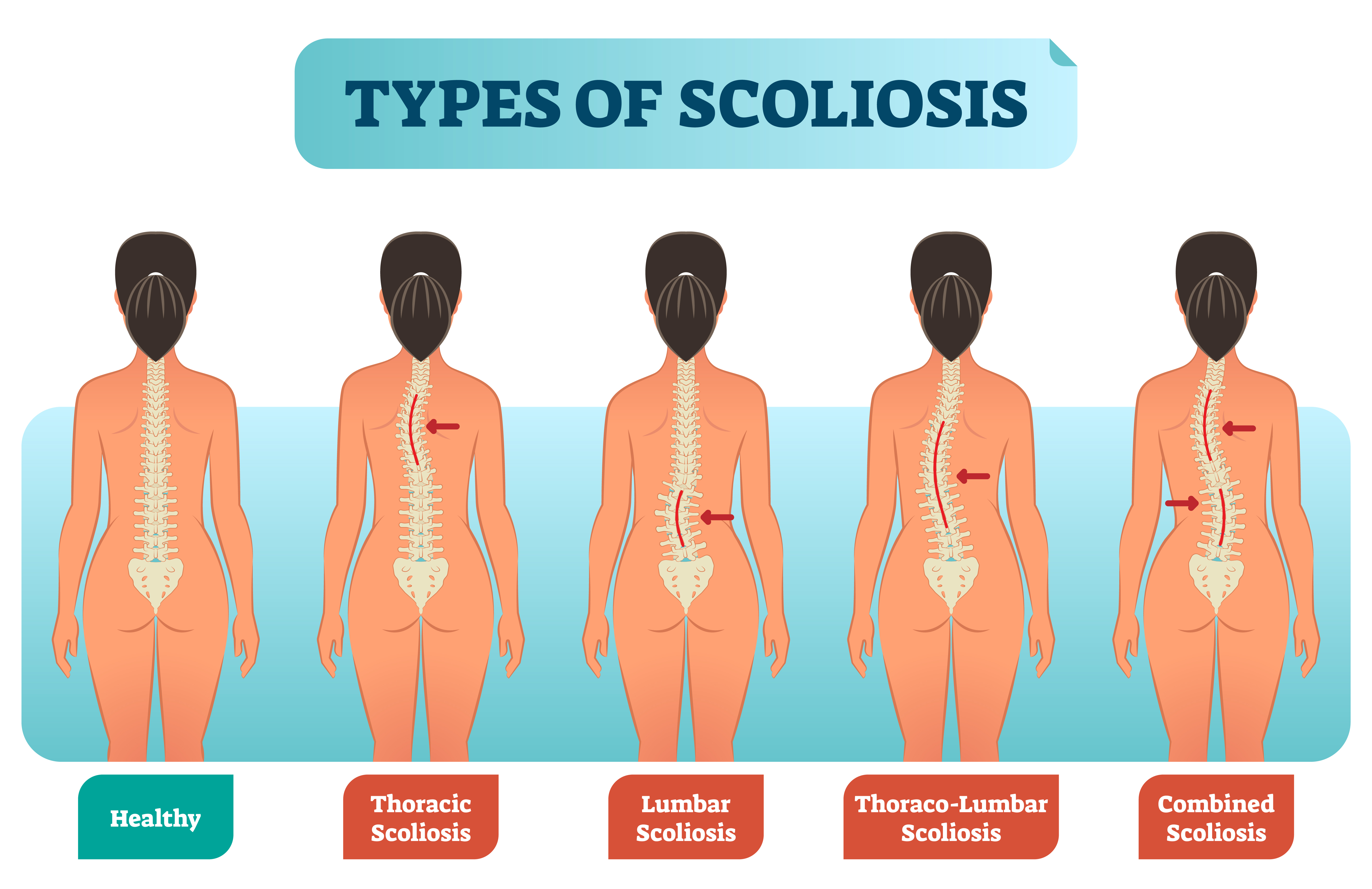 Four types of scoliosis