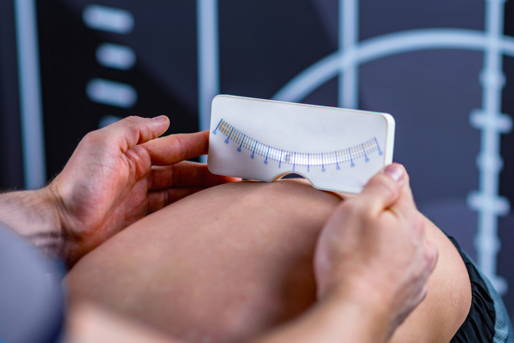 How scoliosis angle can be measured