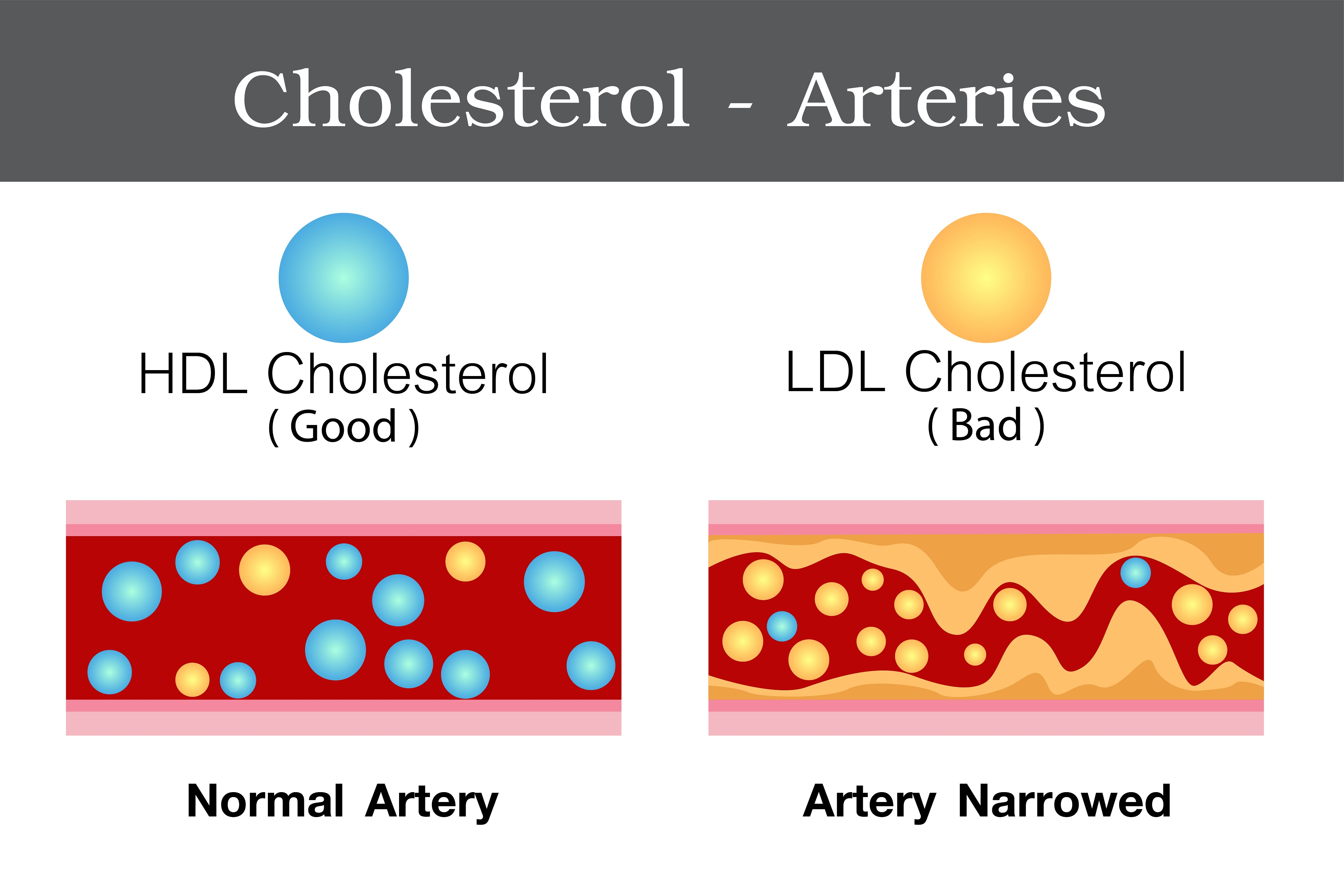 How different fractions of cholesterol acts on our arteries?