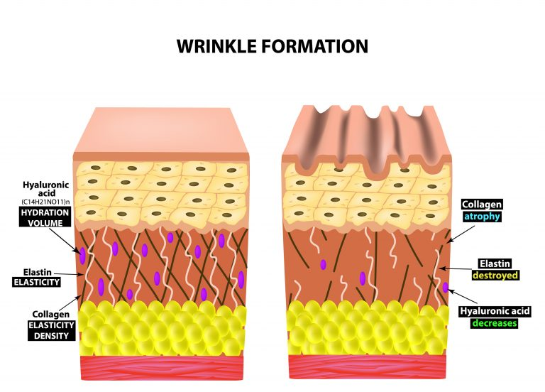 The appearance of wrinkles. Anatomical structure of the skin. Elastin, Hyaluronic acid, Collagen. Infographics. skin aging phenomena. Vector illustration on isolated background