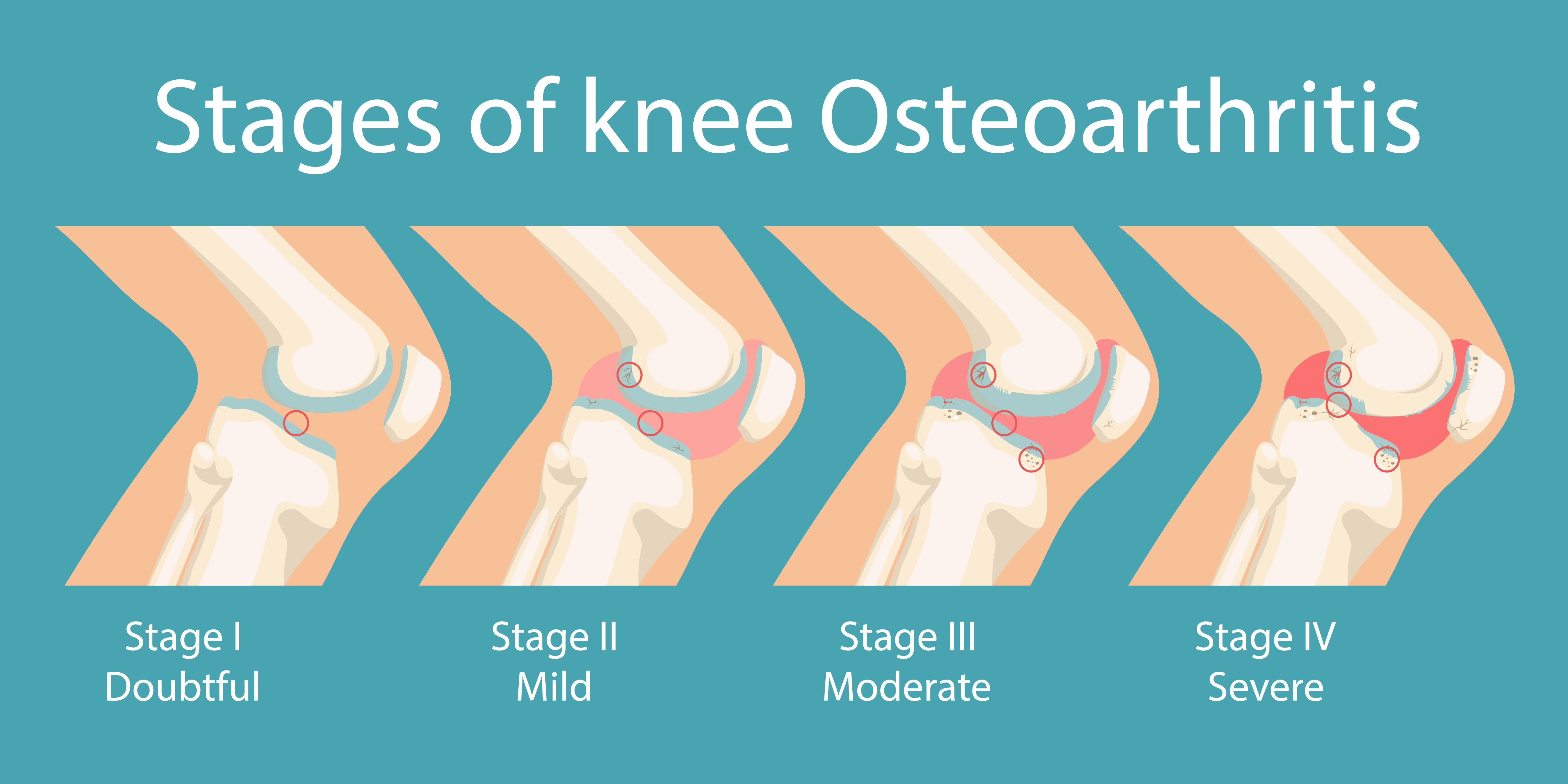 A visualization of osteoarthritis