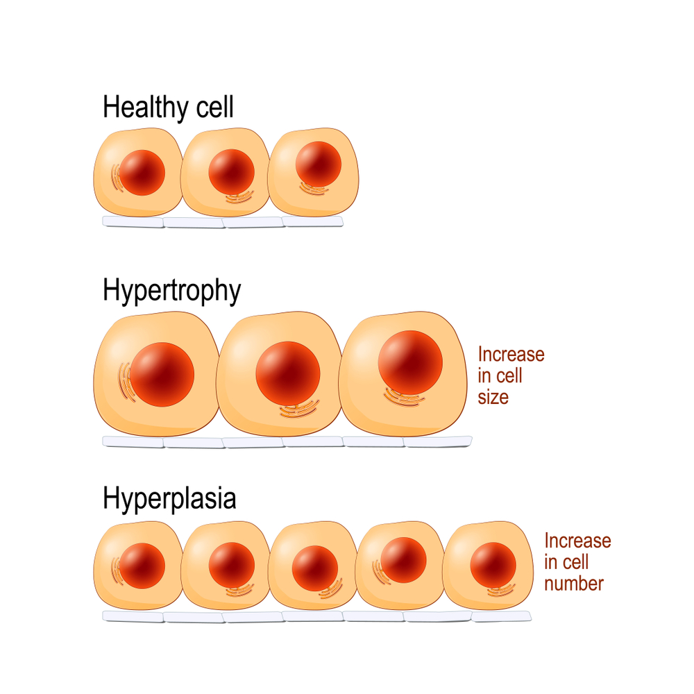 Hypetrophy is nothing more than increasing size of cells - here we mainly mean muscle cells of course!