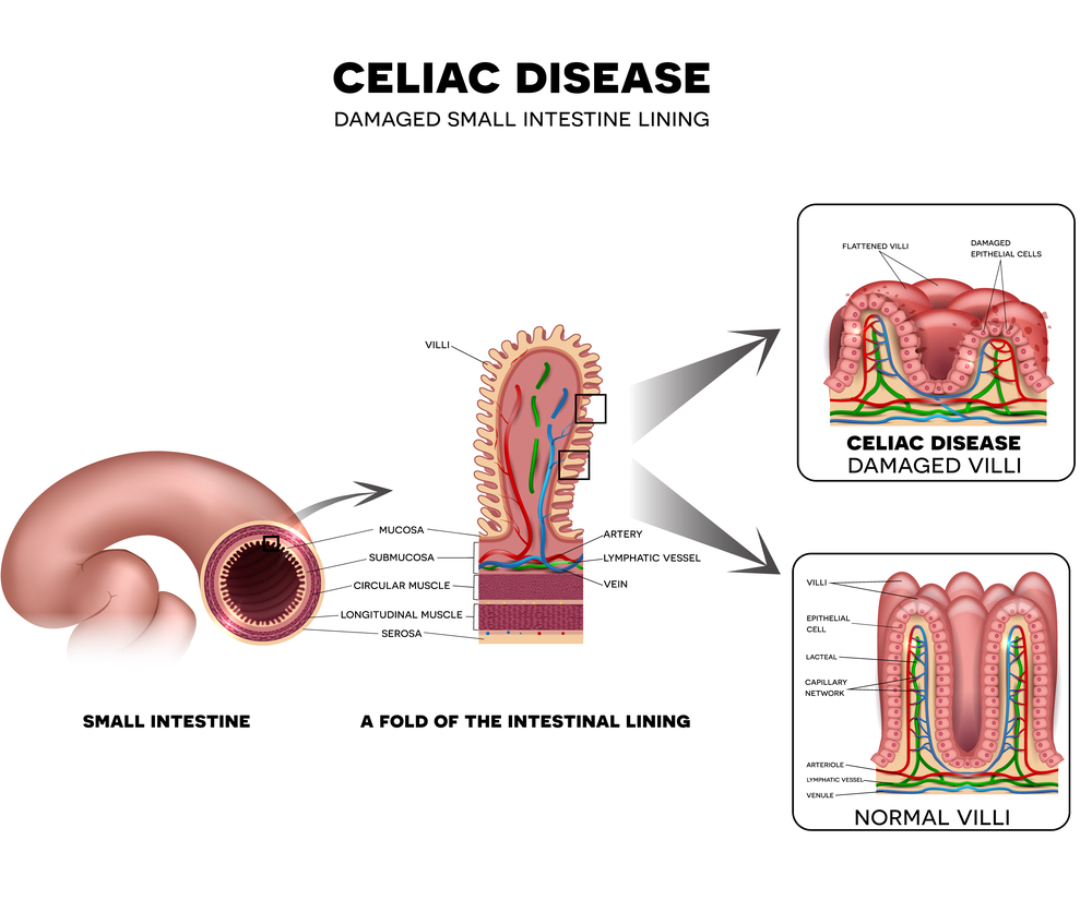 Celiac disease mainly affects the digestive tract