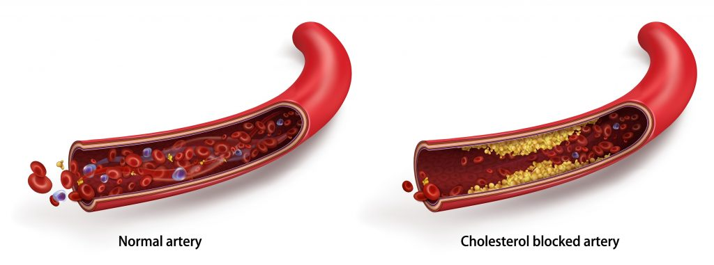 How does cholesterol plaque look like