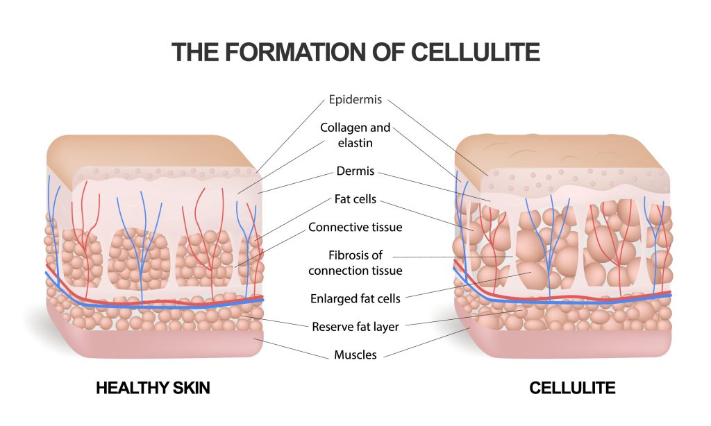 Formation of the cellulite