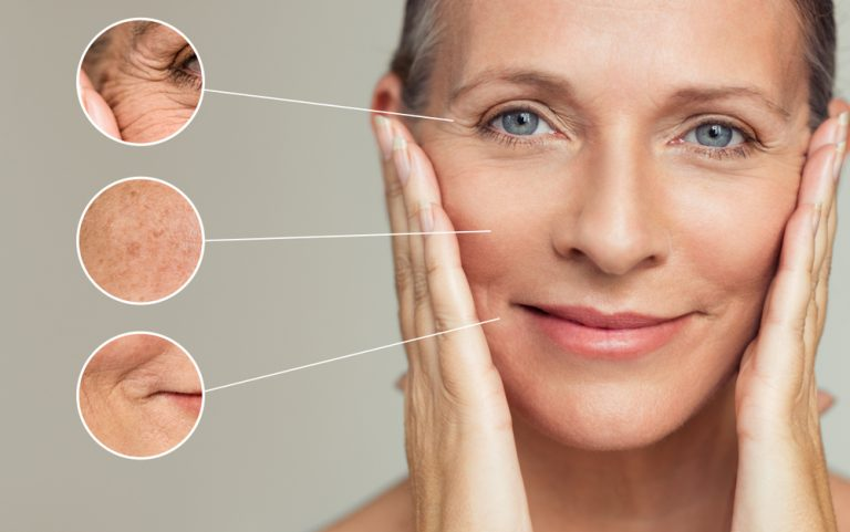 The best home remedies for wrinkles!