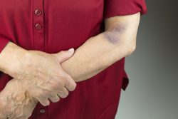 Bruises after falls, injections and after blood tests – how to treat them?