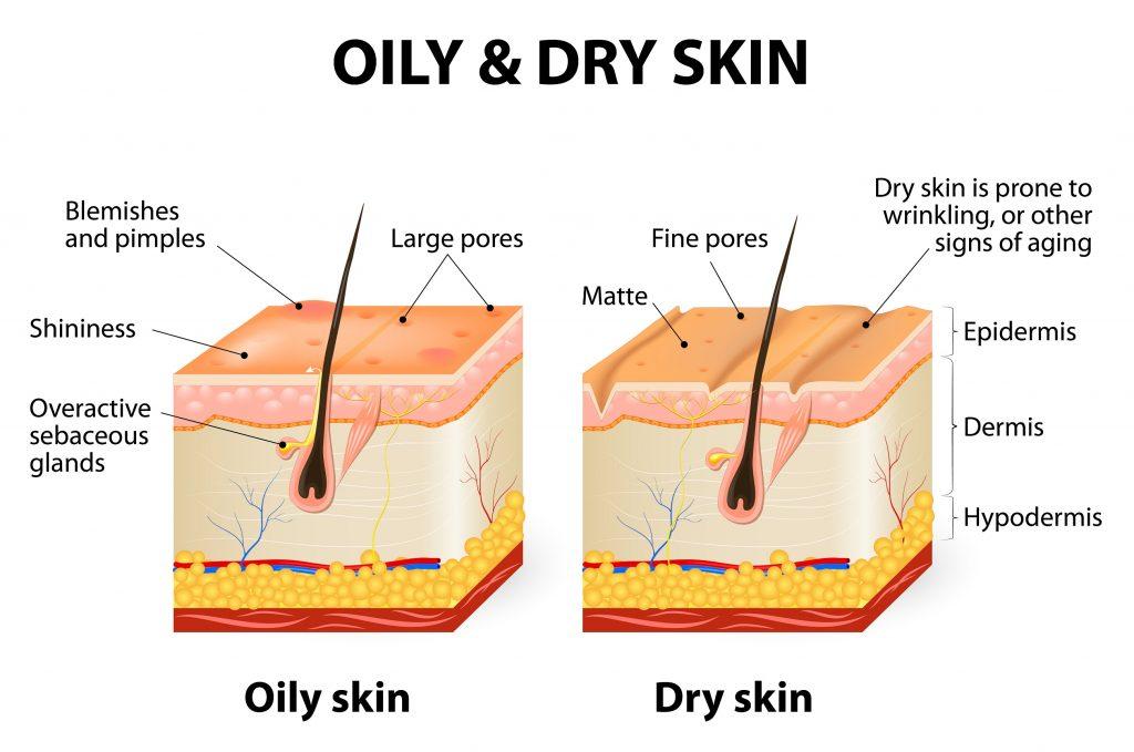 Oily vs Dry skin condition