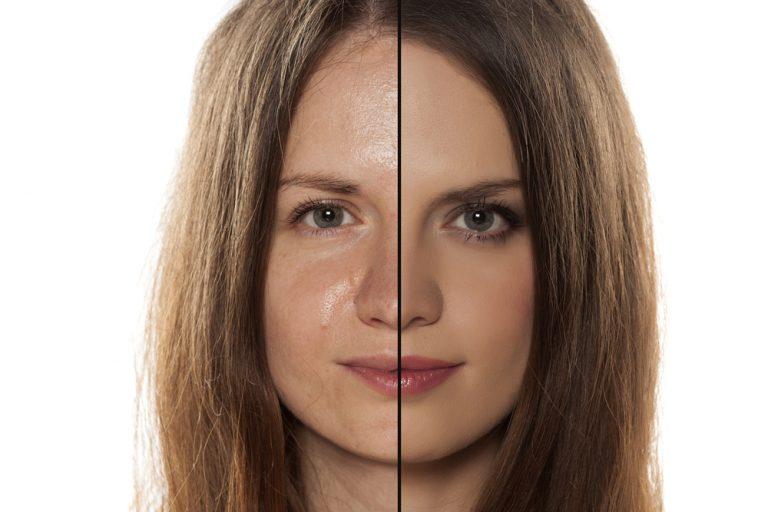Diet for oily skin
