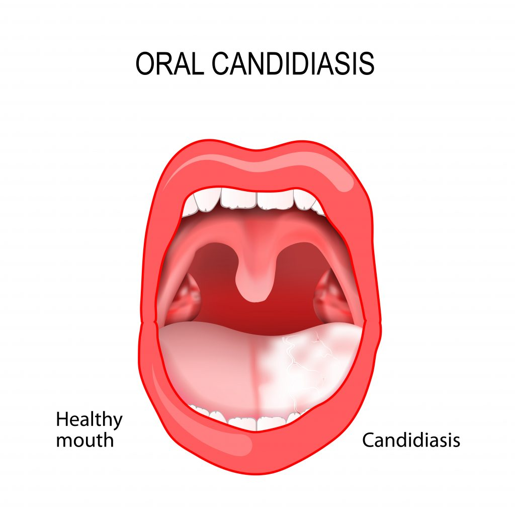 Oral candidiasis - one of the moest known symptoms of this disease