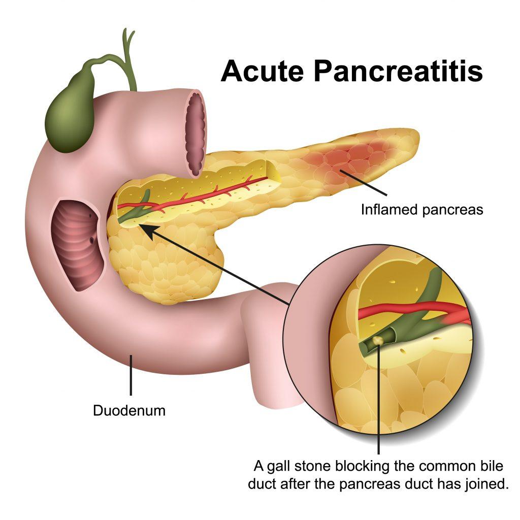 Acute Pancreatitis symptoms