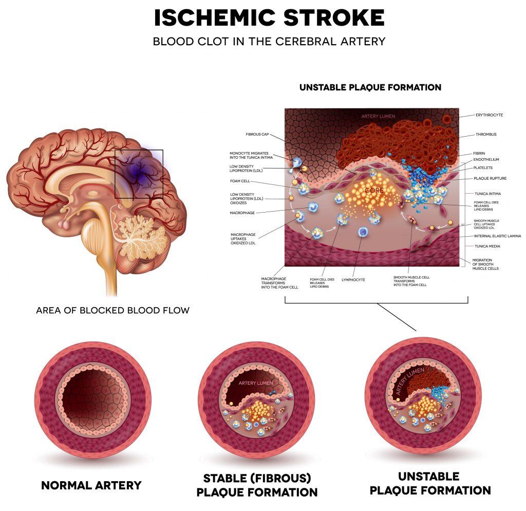 Development of ischemic stroke - infographic